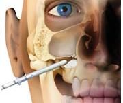 curso elevação do seio maxilar