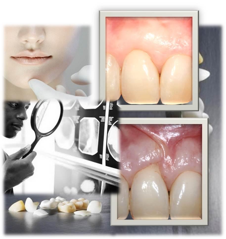curso de periodontologia